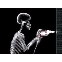 Установка рентгеновских дверей